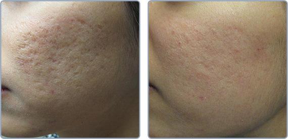 Deep Acne Scars Be Gone - Pixel Fractional CO2 Laser