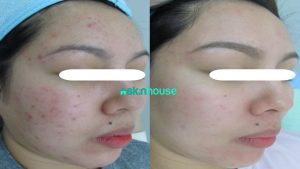 Revlite for Treatment of Acne and SCars