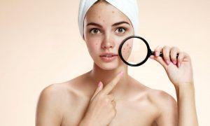 7 acne myths busted?