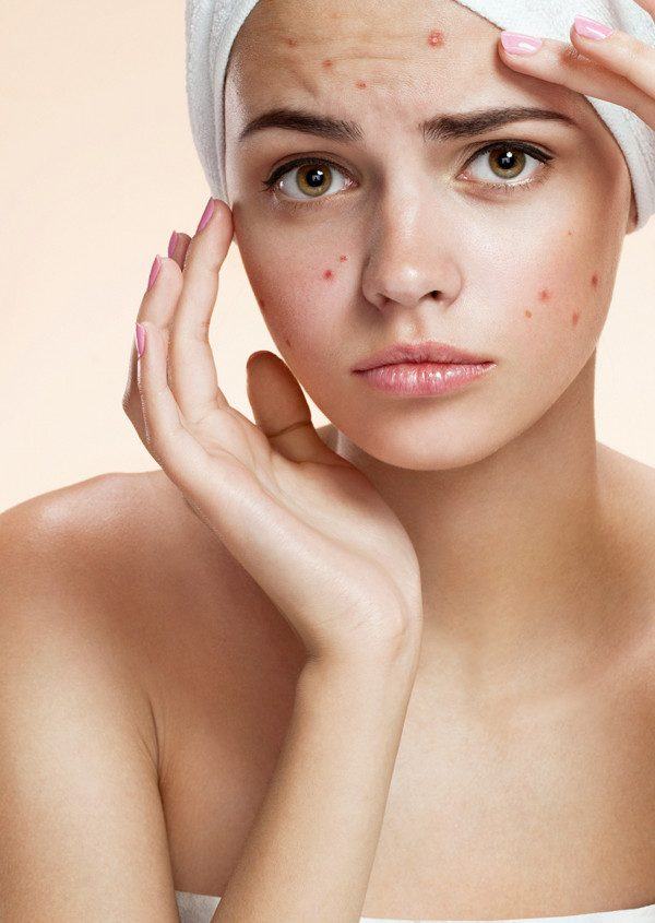 8 things you should avoid if you have acne prone skin. 1