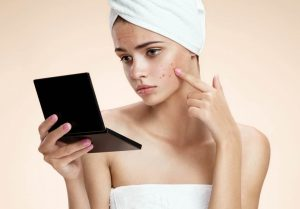 8 things you should avoid if you have acne prone skin.